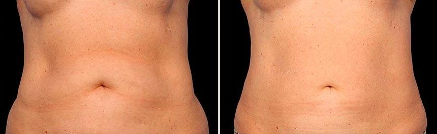 OmniMed Coolsculpting Vorher Nachher Foto nach erster Behandlung Bauch 2