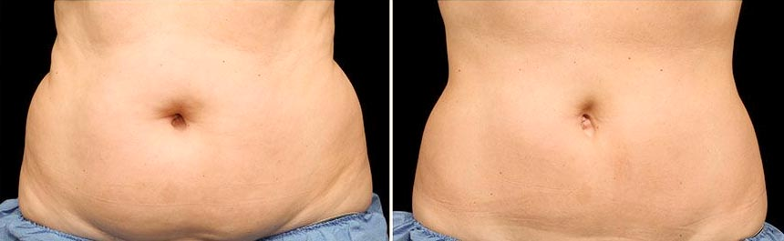 OmniMed Coolsculpting Vorher Nachher Foto nach erster Behandlung Bauch