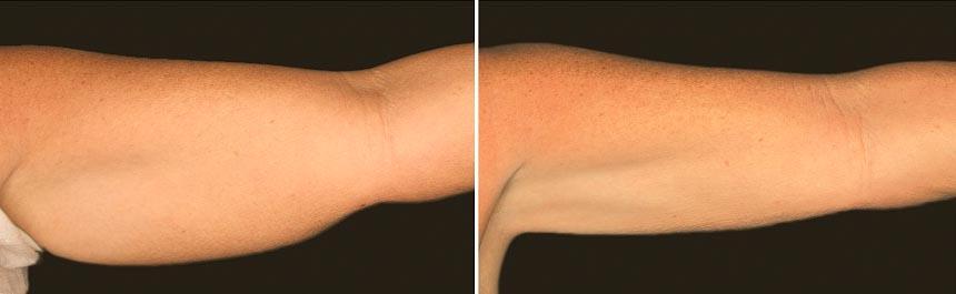 OmniMed Coolsculpting Vorher Nachher Foto nach erster Behandlung Oberarm