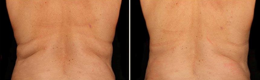 OmniMed Coolsculpting Vorher Nachher Foto nach erster Behandlung Rücken Mann 2