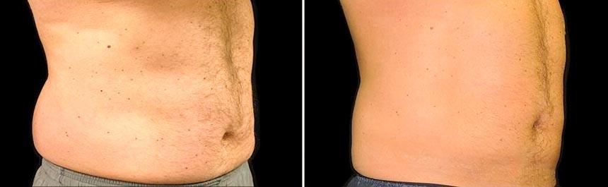 OmniMed Coolsculpting Vorher Nachher Foto nach erster Behandlung Bauch Mann 2
