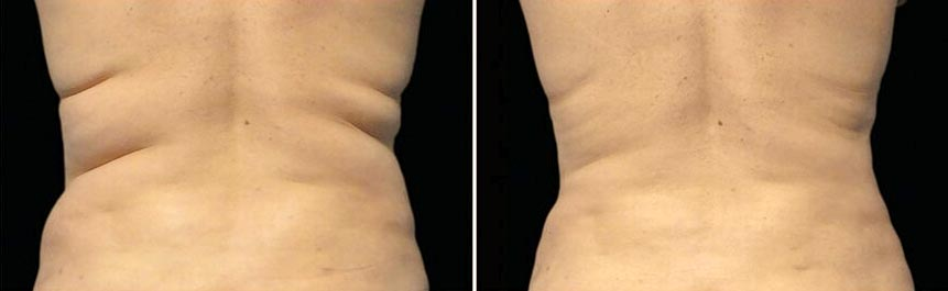 OmniMed Coolsculpting Vorher Nachher Foto nach erster Behandlung Rücken Mann