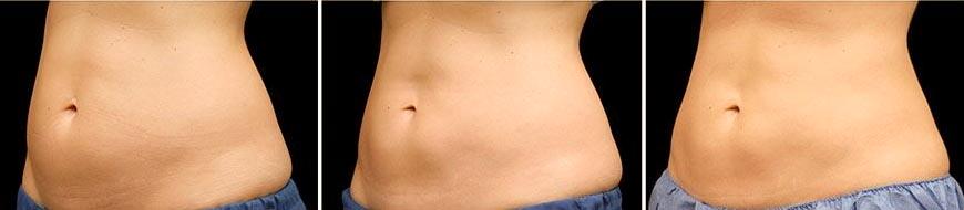 OmniMed Coolsculpting Vorher Nachher Foto nach zweiter Behandlung Rücken Bauch seitlich