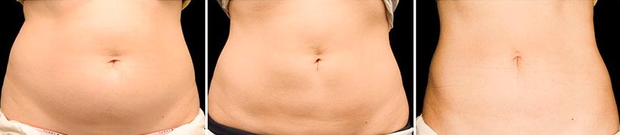 OmniMed Coolsculpting Vorher Nachher Foto nach zweiter Behandlung Rücken Bauch 2