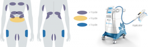 OmniMed CoolSculpting Zyklus