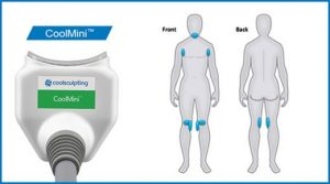 OmniMed CoolSculpting CoolMini