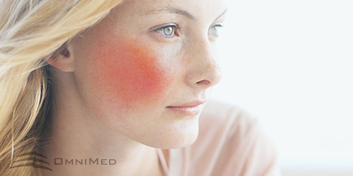 OmniMed Gefäßlaser Behandlung Couperose Äderchen Rosacea Besenreiser