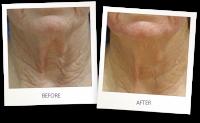Laserbehandlung zur Hautstraffung und Hautverjüngung Vorher-Nachher Foto