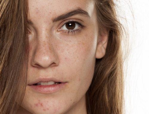 Pigmentstörungen im Gesicht – Was hilft wirklich
