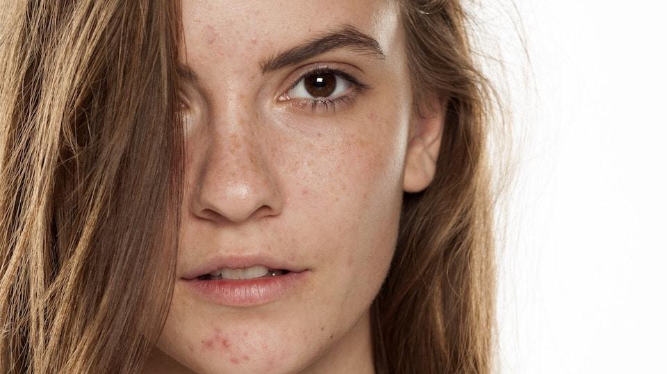 Pigmentstörungen im Gesicht