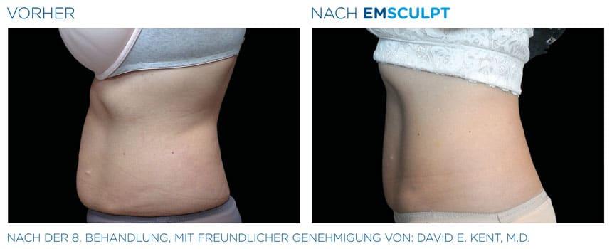 EMSculpt Vorher-Nachher Fotos: Bauch nach der 8. Behandlung