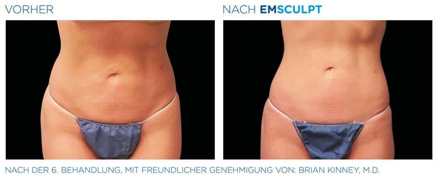 EMSculpt Vorher-Nachher Fotos: Bauch nach der 6. Behandlung