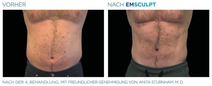 EMSculpt Vorher-Nachher Fotos: Bauch nach der 4. Behandlung