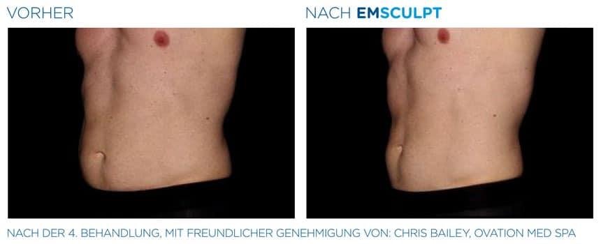 EMSculpt Vorher-Nachher Fotos: Bauch nach 4 Behandlungen