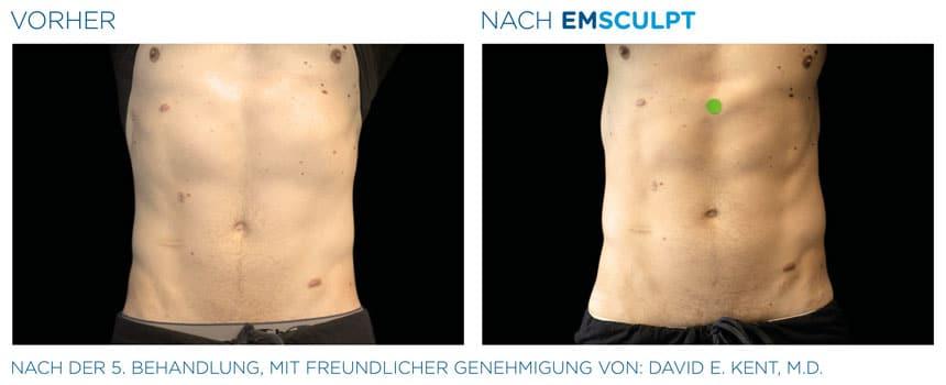 EMSculpt Vorher-Nachher Fotos: Bauch nach der 5. Behandlung