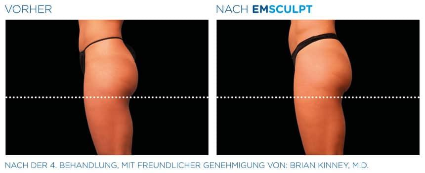 EMSculpt Vorher-Nachher Fotos: Gesäß nach 4 Behandlungen