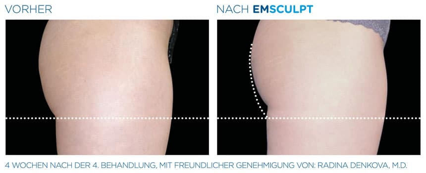 EMSculpt Vorher-Nachher Fotos: Gesäß nach der 4. Behandlung