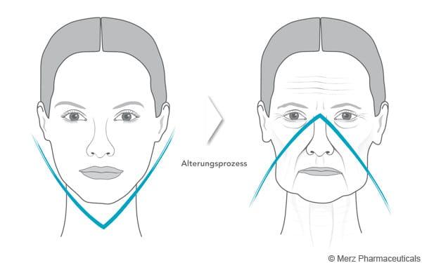 V-Effekt Alterungsprozess
