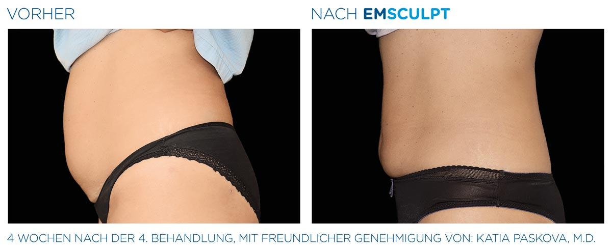 EMSculpt bei OmniMed: Muskelaufbau & abnehmen Vorher-Nachher-Bilder vom Bauch einer Frau von der Seite