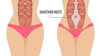 Diastasis recti – Die Rektusdiastase mit EMSCULPT behandeln