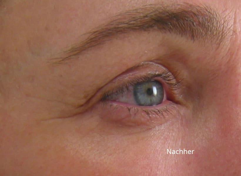 Augenbereich nach der Ultherapy Behandlung