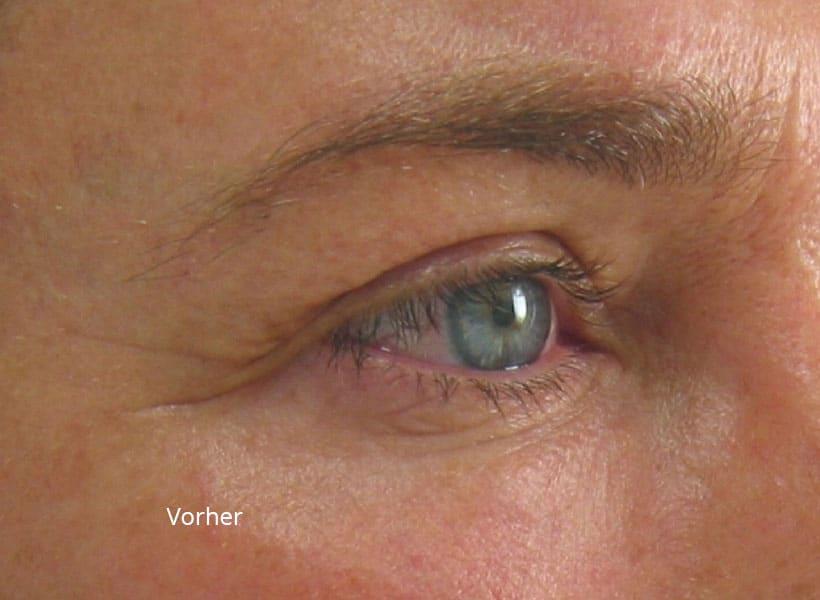 Augenbereich vor der Ultherapy Behandlung