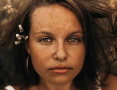 Kantiges Gesicht? Kaumuskel verkleinern mit Botox!
