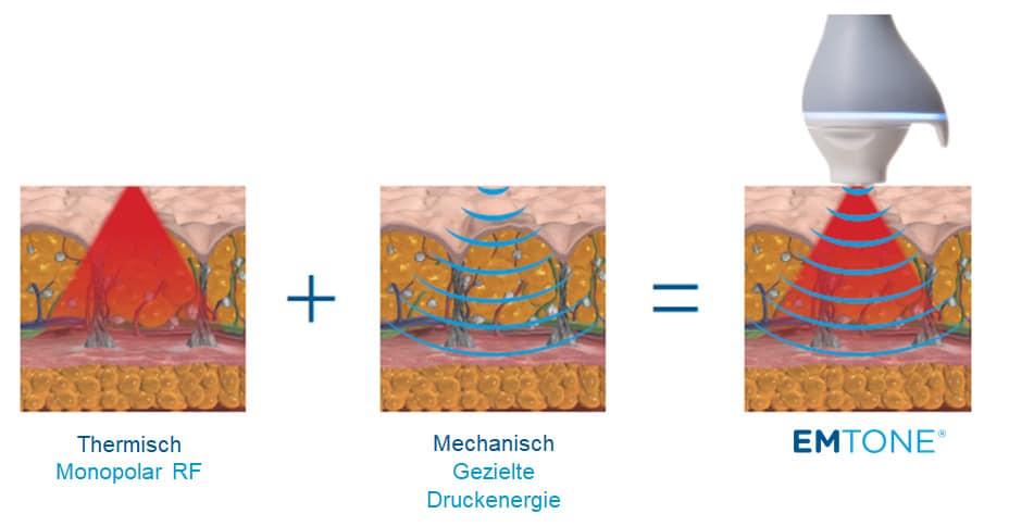 EMTONE Cellulite Behandlung Anwendung