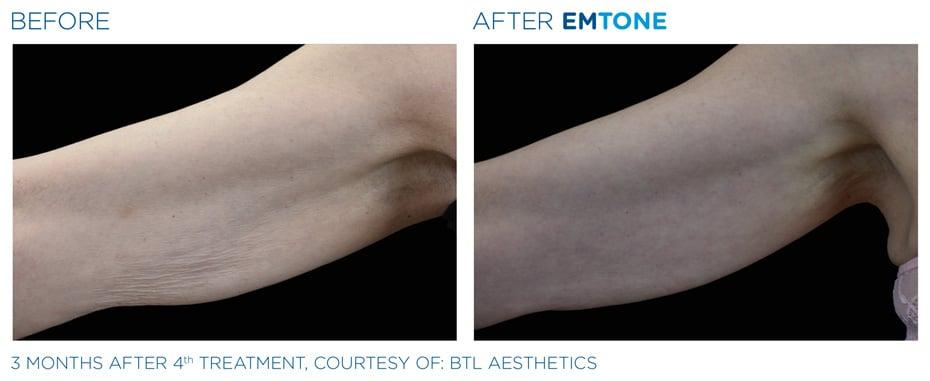 Vorher-Nachher: EMTONE Cellulite Behandlung Arm