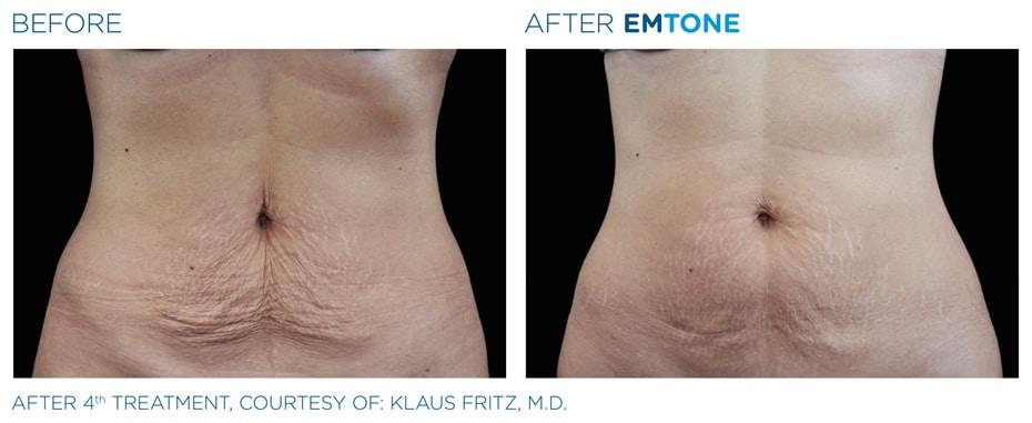 Vorher-Nachher: EMTONE Cellulite Behandlung Bauch