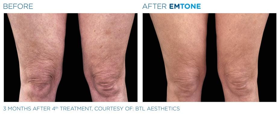 Vorher-Nachher: EMTONE Cellulite Behandlung Oberschenkel