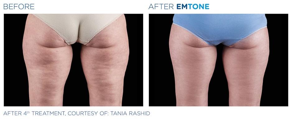 Vorher-Nachher: EMTONE Cellulite Behandlung Po und Oberschenkel