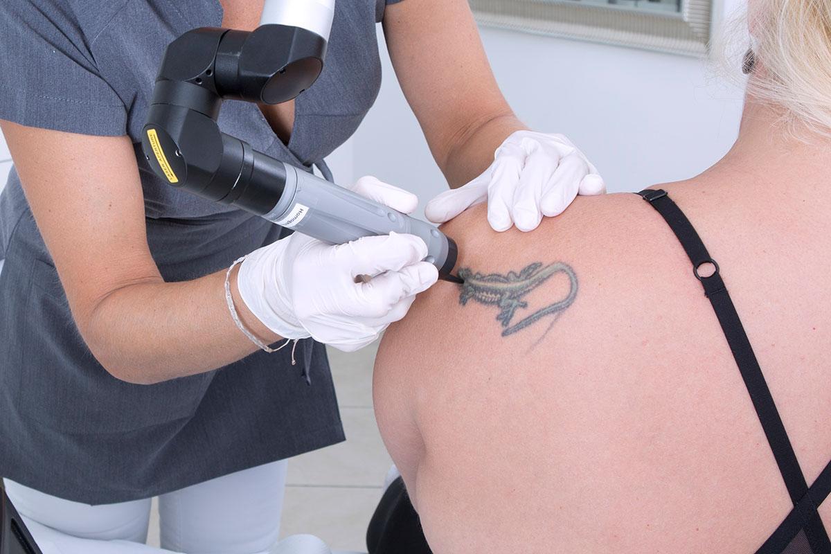 Tattoo Lasern bei OmniMed